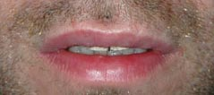 Revision Lip Augmentation - Patient 3 - After