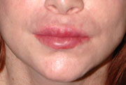Revision Lip Augmentation - Patient 1 - Before