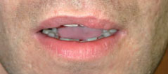 Revision Lip Augmentation - Patient 3 - Before