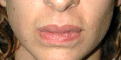 Revision Lip Augmentation - Patient 2 - After
