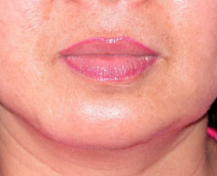 Chin Implants - Patient 1 - After