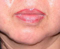 Chin Implants - Patient 1 - Before