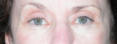 Revision Blepharoplasty - Patient 2 - After