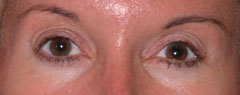 Revision Blepharoplasty - Patient 1 - After
