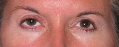 Revision Blepharoplasty - Patient 1 - Before