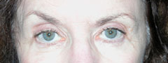 Revision Blepharoplasty - Patient 2 - Before