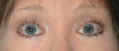 Revision Blepharoplasty - Patient 3 - After