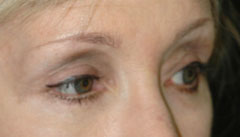 Revision Blepharoplasty - Patient 4 - After