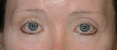 Revision Blepharoplasty - Patient 3 - Before