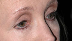 Revision Blepharoplasty - Patient 4 - Before