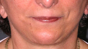 Revision Face Lift - Patient 6 - Front - After