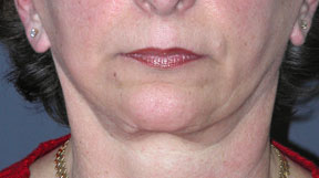 Revision Face Lift - Patient 6 - Front - Before