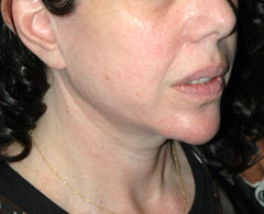 Revision Face Lift - Patient 2 - Obl Right - After