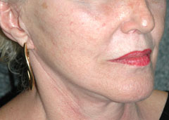 Revision Face Lift - Patient 1 - Obl Right - After