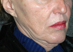 Revision Face Lift - Patient 1 - Obl Right - Before
