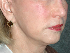 Revision Face Lift - Patient 4 - Obl Right - After