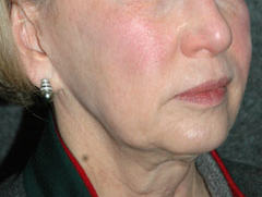 Revision Face Lift - Patient 4 - Obl Right - Before