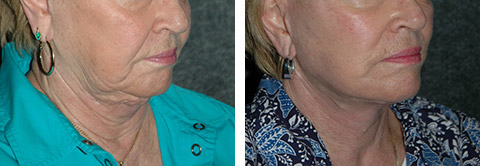 best facelift revision photos