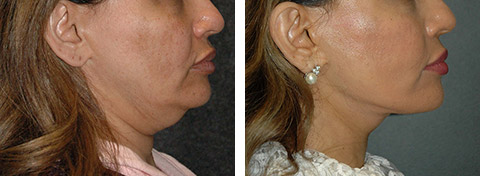 best revision facelift results nyc