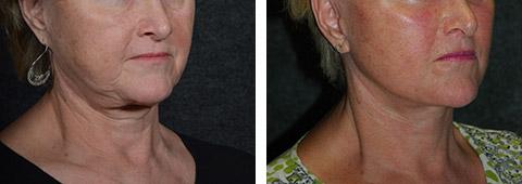 cobra neck deformity