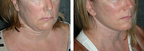 facelift necklift revision