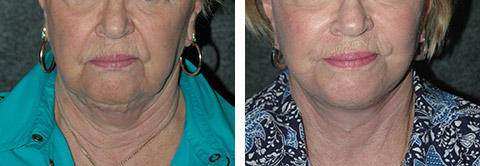 facelift revision photos