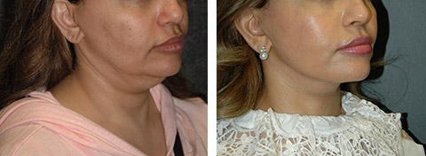 new york revision facelift results