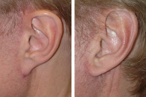 revision face lift pixie ear