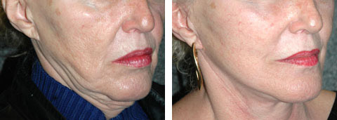 Revision Face Lift Surgery Lateral Sweep Deformity Before Photo