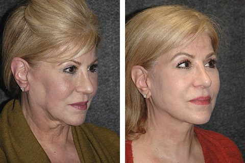 revision facelift specialist surgeon