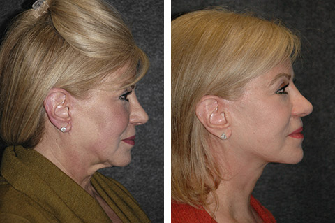revision facelift specialist
