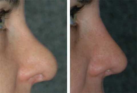 best revision rhinoplasty specialist ny