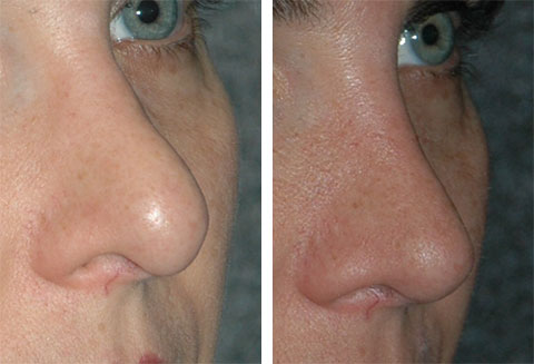 best revision rhinoplasty specialist