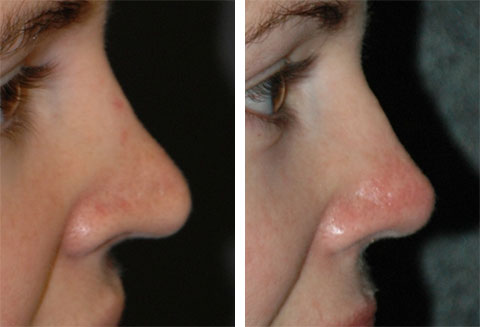 best revision rhinoplasty surgeon in america