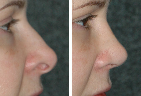 best revision rhinoplasty surgeon ny