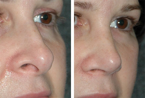 best revision rhinoplasty surgeon nyc