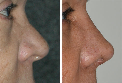 best revision rhinoplasty surgeons cartilage grafting