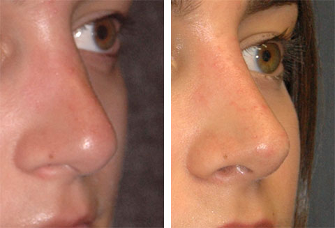 revision rhinoplasty before after