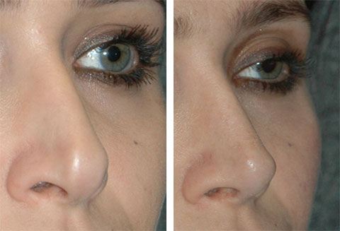 revision rhinoplasty tip graft