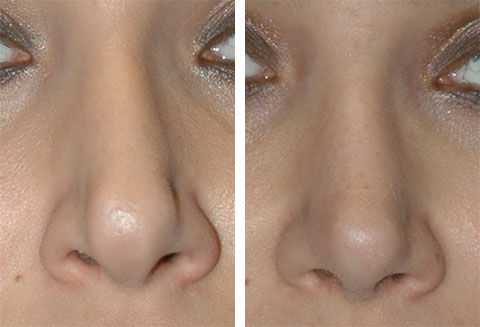 revision rhinoplasty tip grafts