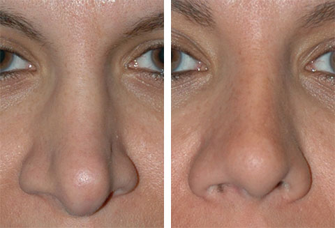 tip revision rhinoplasty before and after