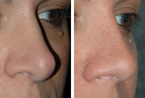 tip revision rhinoplasty before and afters