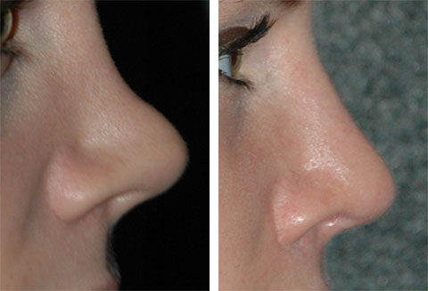 top revision rhinoplasty surgeon