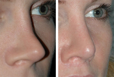 top revision rhinoplasty surgeons