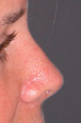 Revision Rhinoplasty - Patient 4 - Lateral Right - After
