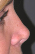 Revision Rhinoplasty - Patient 4 - Lateral Right - Before