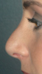 Revision Rhinoplasty - Patient 6 - Lateral Left - Before