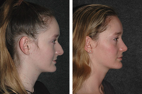 best rhinoplasty surgeon in america