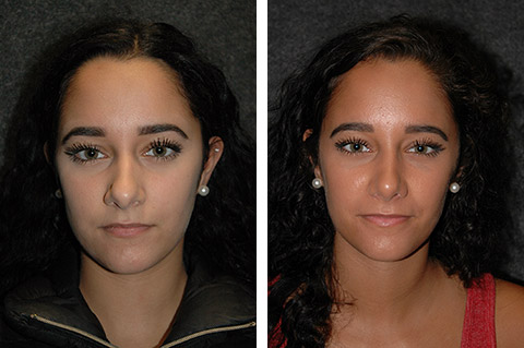 natural rhinoplasty results new york