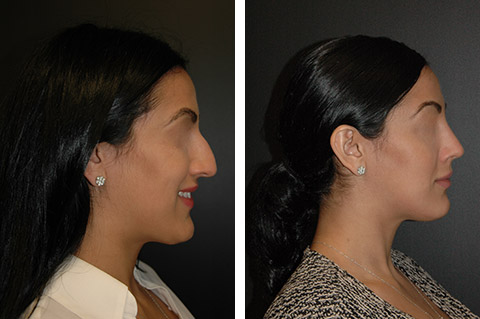 new york rhinoplasty specialist photos